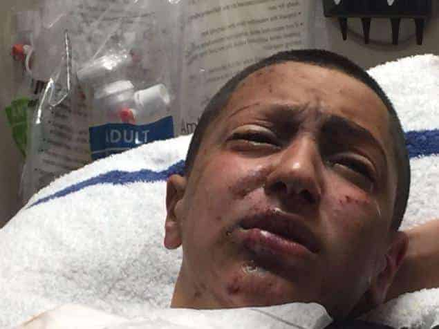 The teen suffered numerous injuries, including a blinded left eye, after an e-cig exploded at a Brooklyn, NY mall kiosk.
