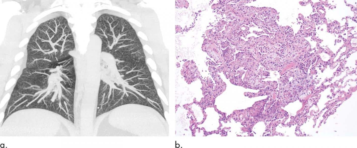Abnormal lung image findings in EVALI vape patients