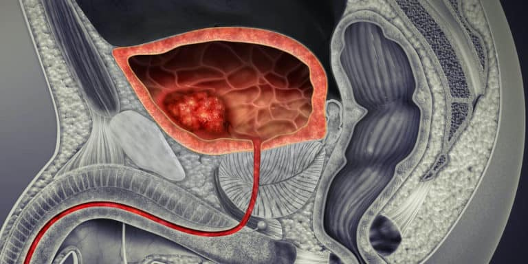 An image depicting a bladder cancer tumor