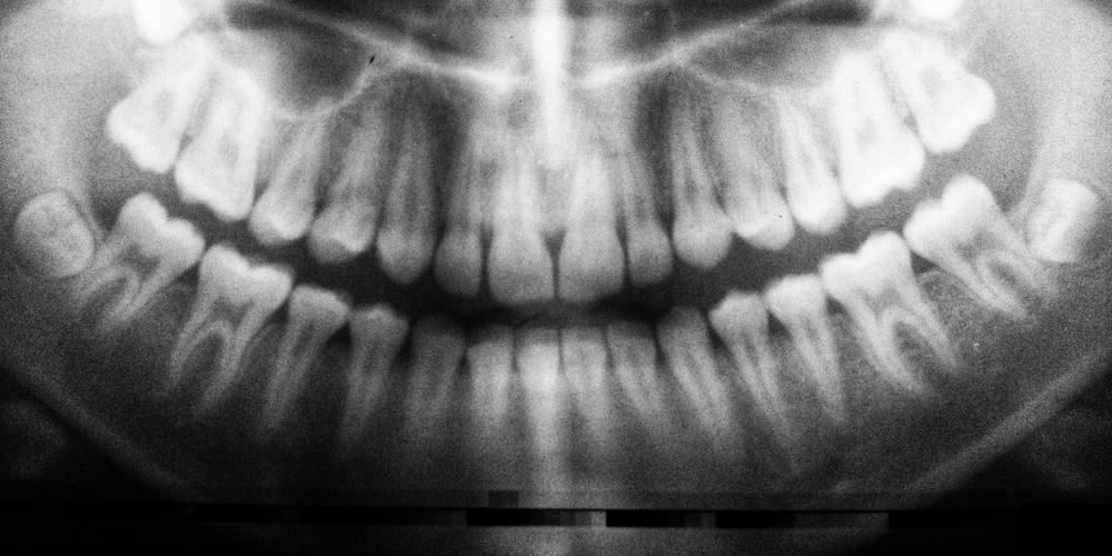 An x-ray image of the mouth, teeth, mouth microbiome