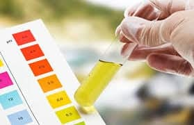 cbd-urine-test