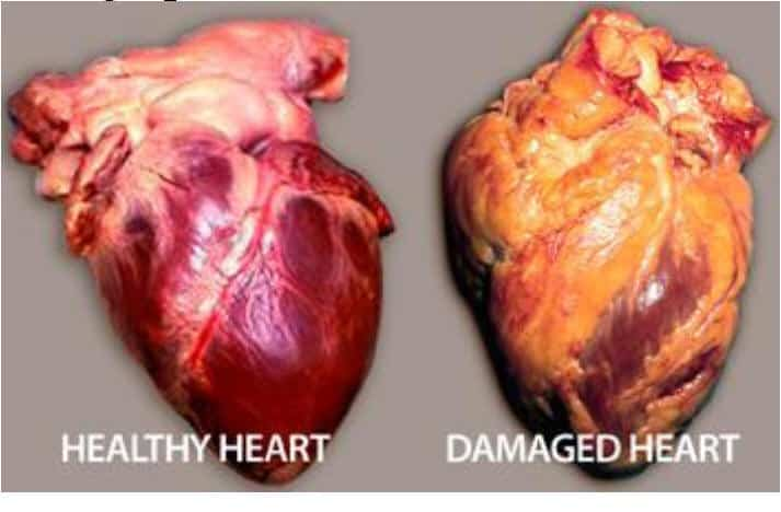 effects of quitting smoking on your heart