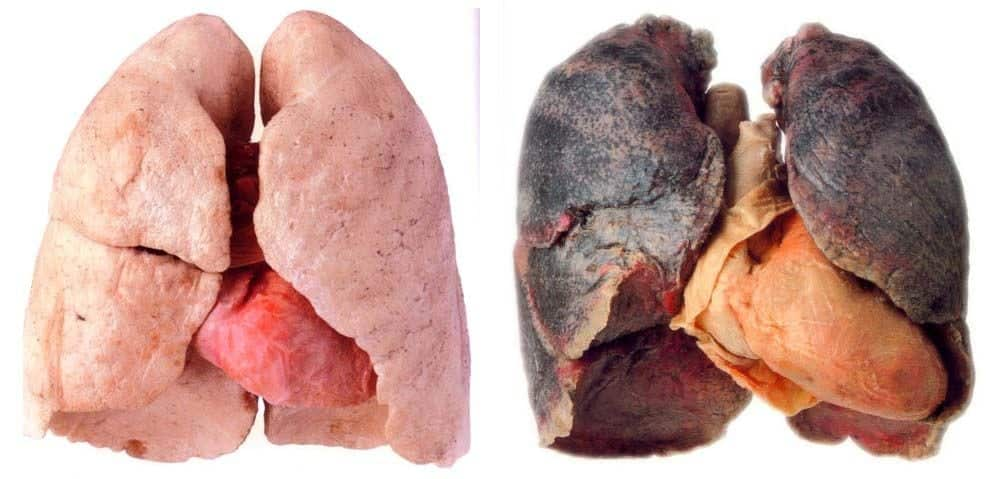 effects of quitting smokingon lungs