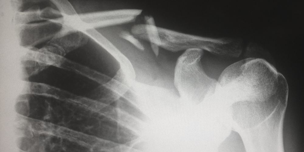 a partial x-ray of a human chest