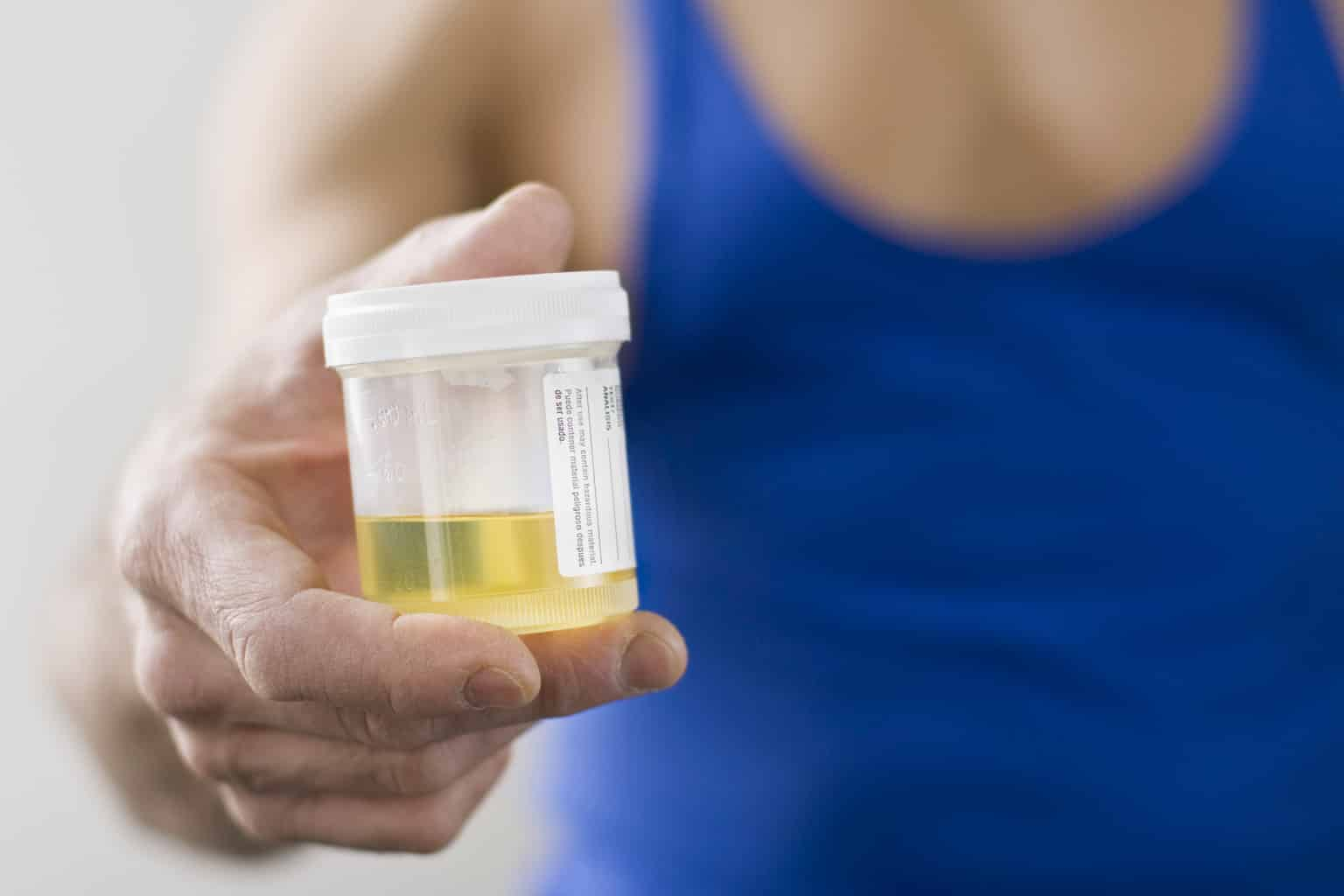 Person holding a cup of urine